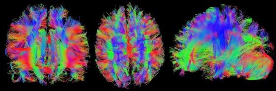 brain-1728449_1280